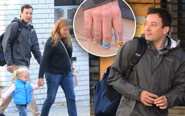 jimmy-fallon-injures-other-hand-hospital-10