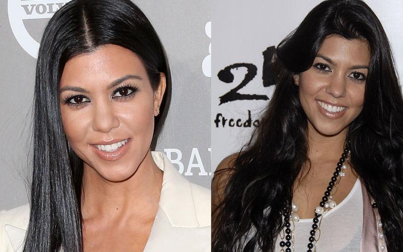 kourtney kardashian plastic surgery docs