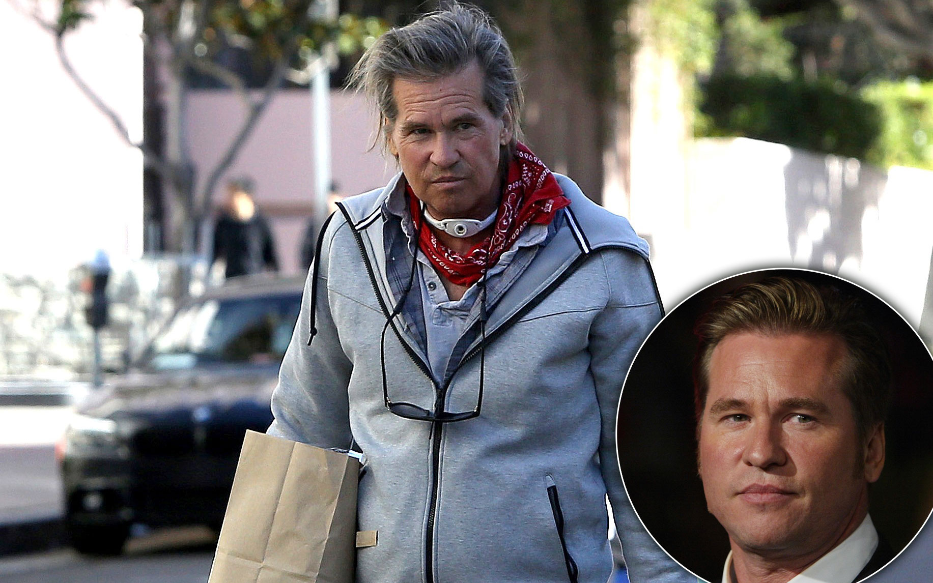 Health Crisis Val Kilmer Spotted With Tracheostomy Tube After