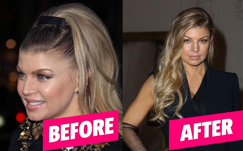 fergie face plastic surgery pics