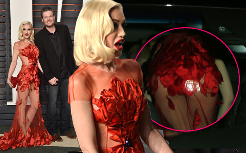 Gwen stefani wardrobe malfunction dress butt blake shelton oscars 01