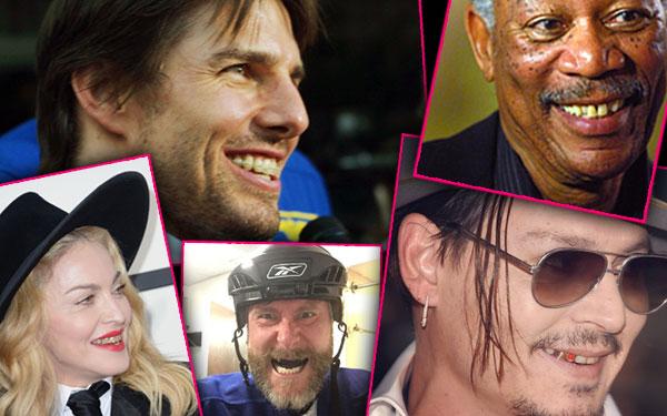 Celebrities Bad Teeth Problems Gross Pics 8