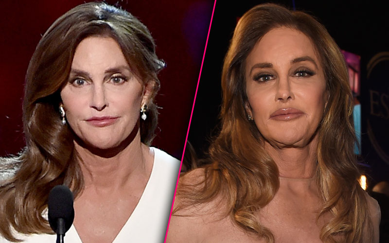 Caitlyn Jenner Plastic Surgery Lip Fillers Kylie Jenner Copycat