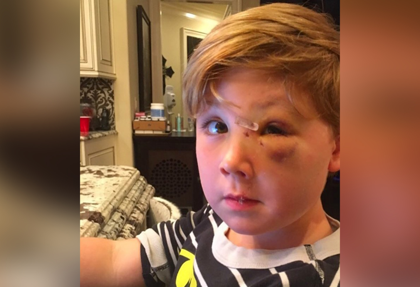 Kim zolciak updates fans on sons recovery following brutal dog attack hero star