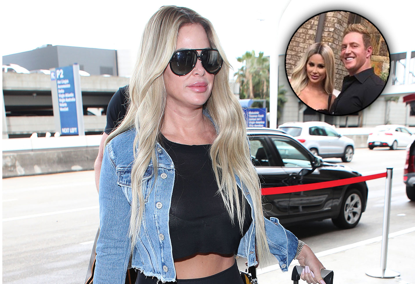 Kim Zolciak plastic surgery lip fillers kroy biermann
