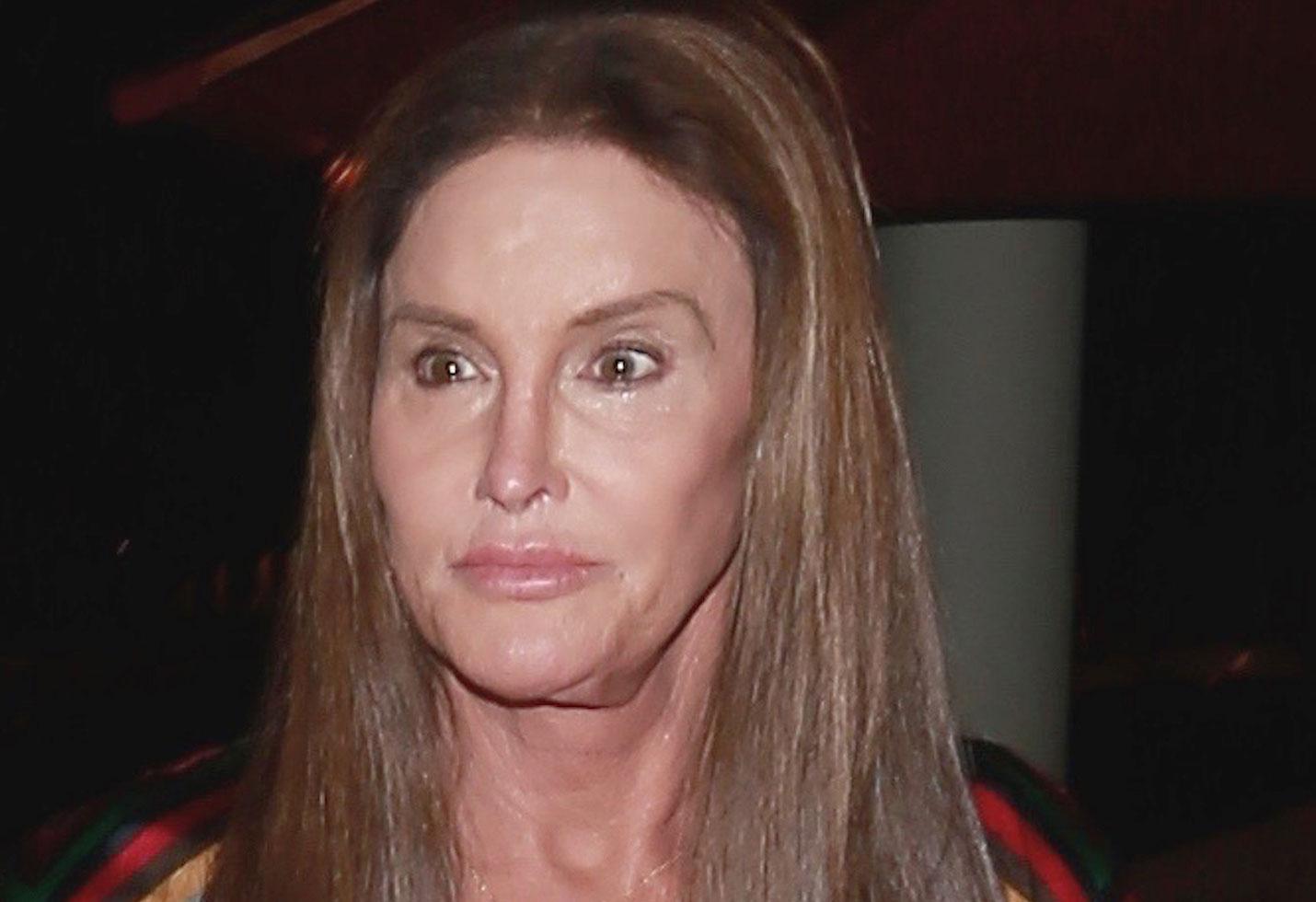 Caitlyn jenner plastic surgery disaster photos